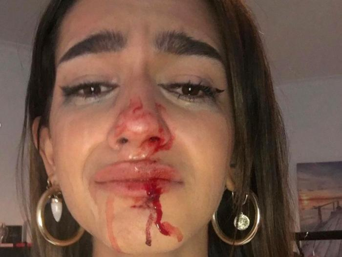 Trans Teen Calls Out Attackers After Day of Remembrance Beating